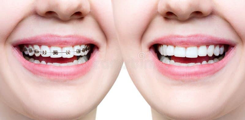 Schönes Lächeln mit den perfekten Zähnen vor und nach Klammern stockfotos
