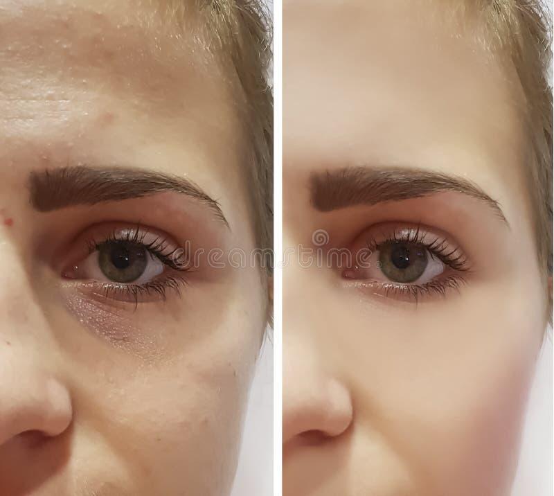 Schönes Mädchen knittert auf Gesichtsregenerationsanhebendem Effekt Cosmetology vor und nach Verfahren lizenzfreies stockfoto