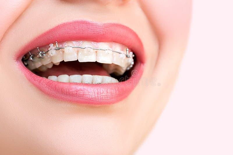 Schönes weibliches Lächeln mit Selbst-Verbindungsklammern stockbilder