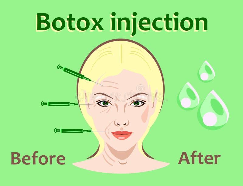 Schönheitschirurgievektorillustration Botox Einspritzung Frauengesichtsfaltenbehandlung vektor abbildung