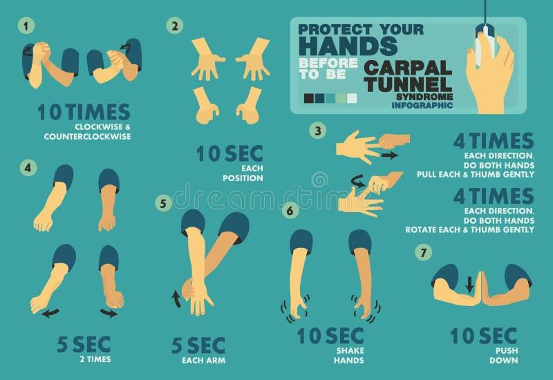 Schützen Sie Ihre Hände vorher, um Carpaltunnel syndome, infographic Elemente zu sein - Vector flaches Design stock abbildung
