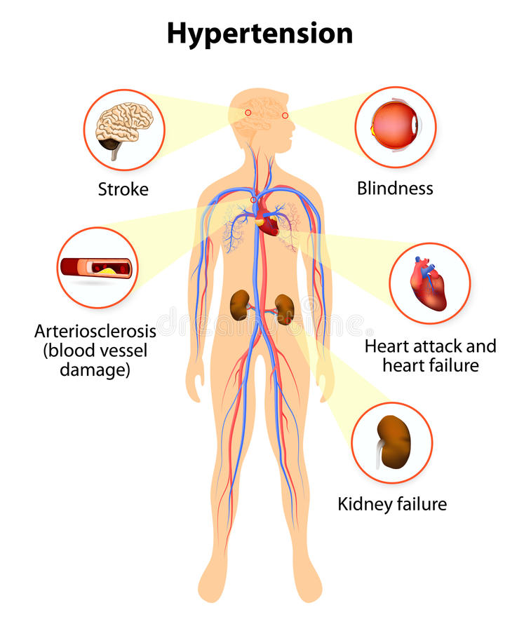 Schade van hoge bloeddruk vector illustratie