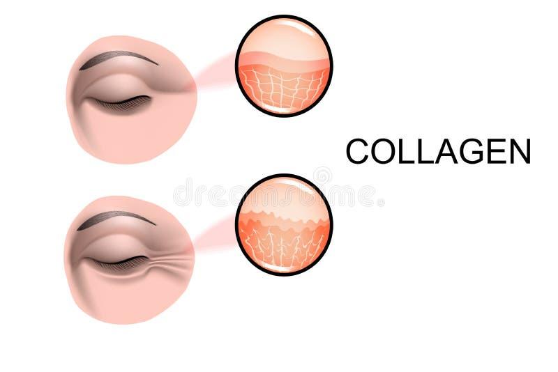 Schaden des Hautkollagens Falten vorher und nachher vektor abbildung