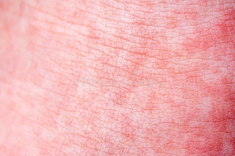 Scharlach beginnt mit einer roten Eile und die Erdbeerzunge danach die betroffene Haut zieht häufig - hier roter Haut ab lizenzfreies stockfoto