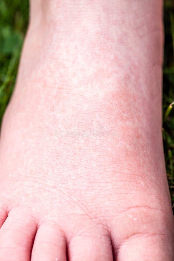 Scharlach beginnt mit einer roten Eile und die Erdbeerzunge danach die betroffene Haut zieht häufig - hier roter Haut ab lizenzfreie stockbilder