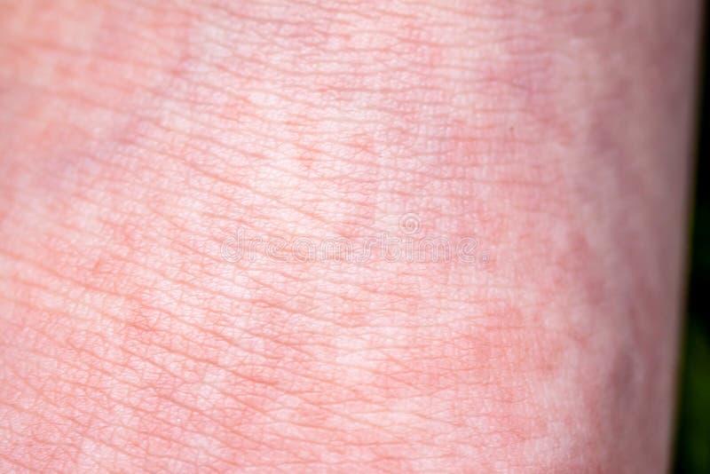 Scharlach beginnt mit einer roten Eile und die Erdbeerzunge danach die betroffene Haut zieht häufig - hier roter Haut ab lizenzfreie stockfotografie