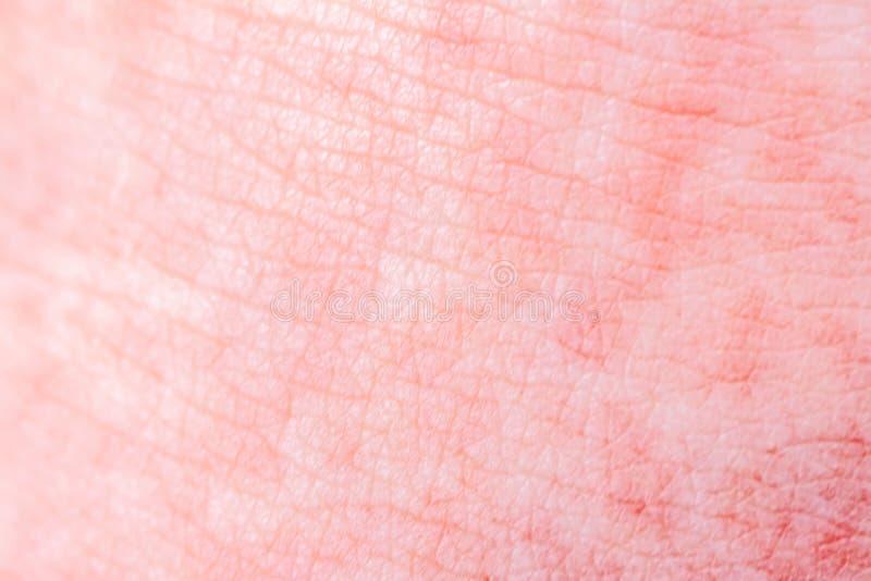 Scharlach beginnt mit einer roten Eile und die Erdbeerzunge danach die betroffene Haut zieht häufig - hier roter Haut ab stockfoto