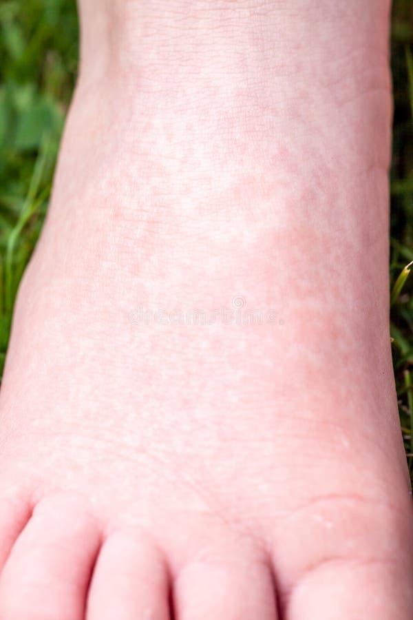 Scharlach beginnt mit einer roten Eile und die Erdbeerzunge danach die betroffene Haut zieht häufig - hier roter Haut ab stockfotografie