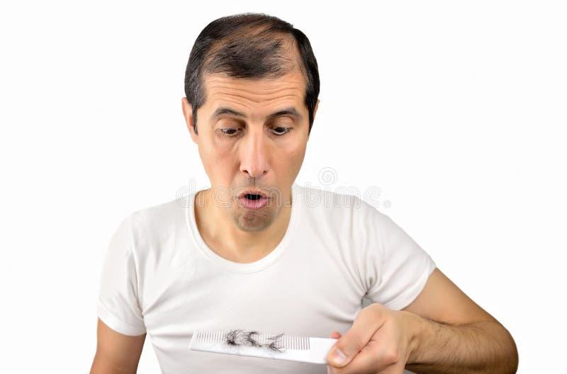 Schauen des Haarausfalls stockbilder