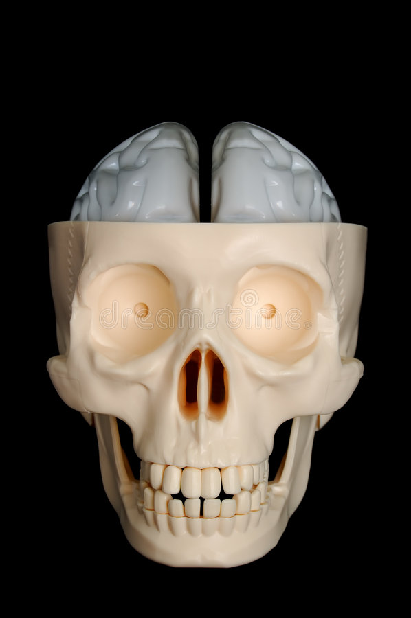 Schedel met Blootgestelde Hersenen royalty-vrije stock foto