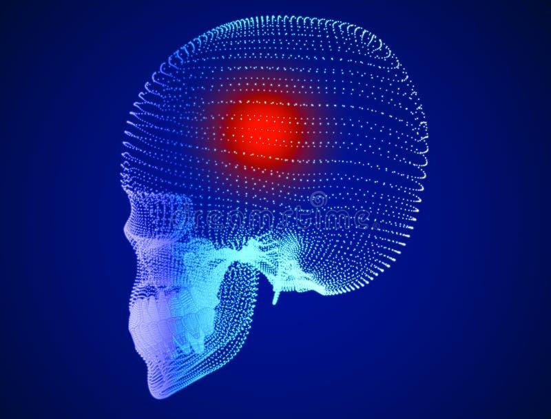 Schedel, pijn, hoofdpijnen, neuronen, synapsen, neuraal netwerk, hersenen, neuronenkring, degeneratieve ziekten, Parkinson's royalty-vrije illustratie