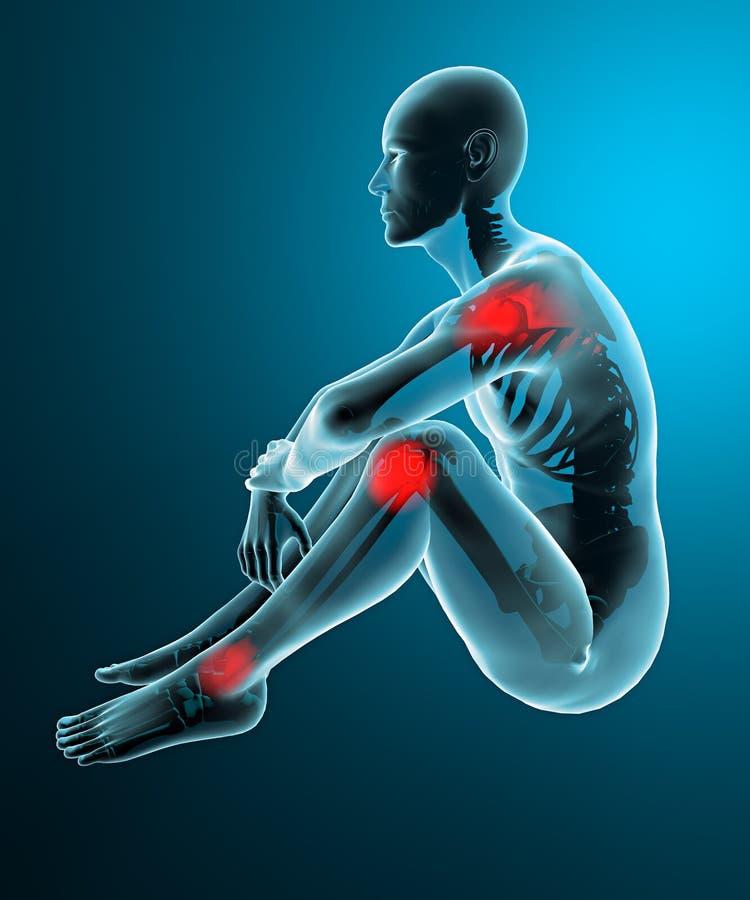 Scheletro dei raggi x di dolori articolari dell'uomo illustrazione vettoriale