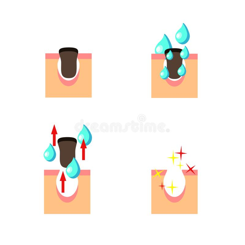 Cleansing skin process, vector illustration isolated on the white background. Scheme of Cleansing skin process, vector illustration isolated on the white vector illustration