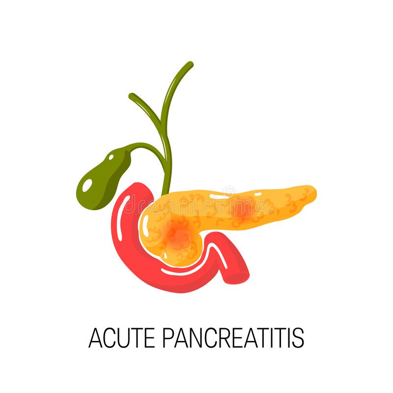 Scherp pancreatitis concept Vector illustratie vector illustratie