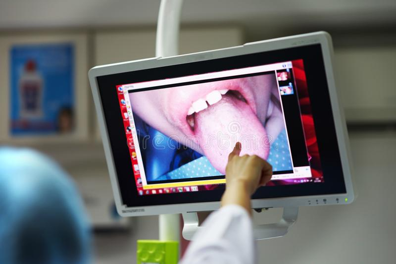 Schirmmonitor im Zahnarztraum für Show innerhalb der Mundansicht stockfoto
