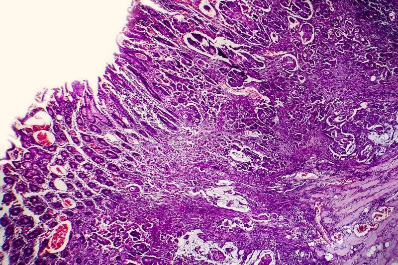 Schlecht unterschiedener intestinaler Adenocarcinoma, heller Mikrograph lizenzfreies stockbild