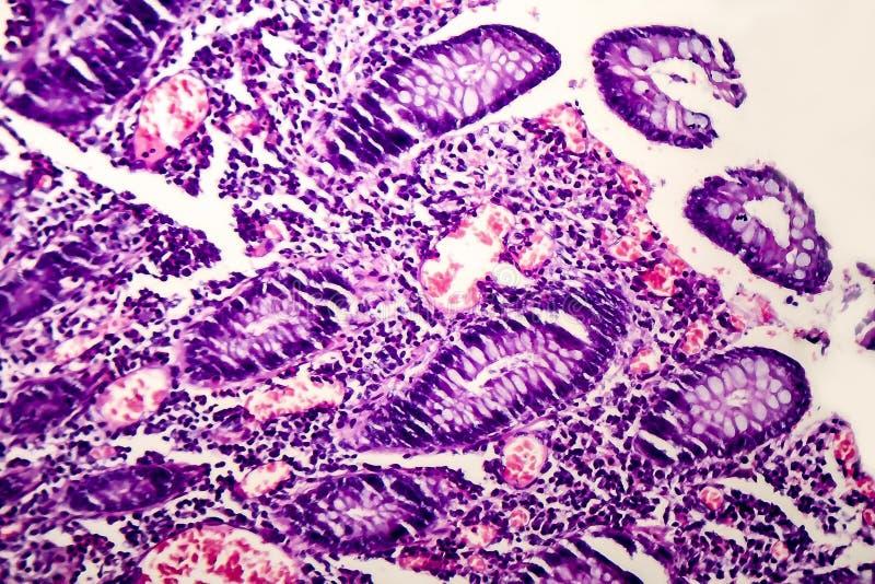 Schlecht unterschiedener intestinaler Adenocarcinoma, heller Mikrograph lizenzfreie stockbilder