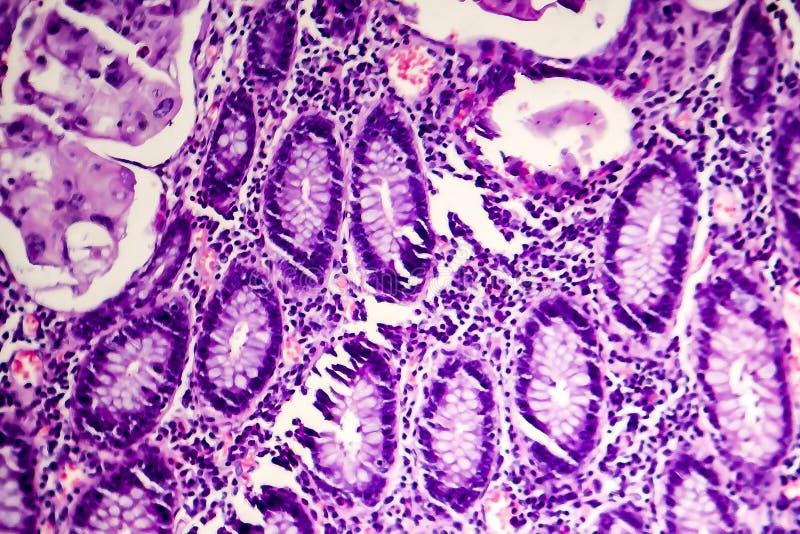Schlecht unterschiedener intestinaler Adenocarcinoma, heller Mikrograph stockfotografie