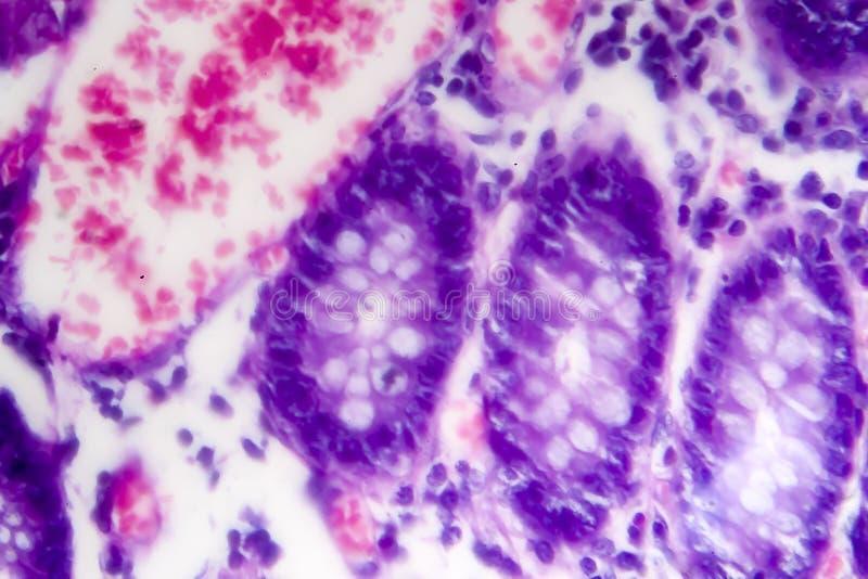Schlecht unterschiedener intestinaler Adenocarcinoma, heller Mikrograph stockbilder