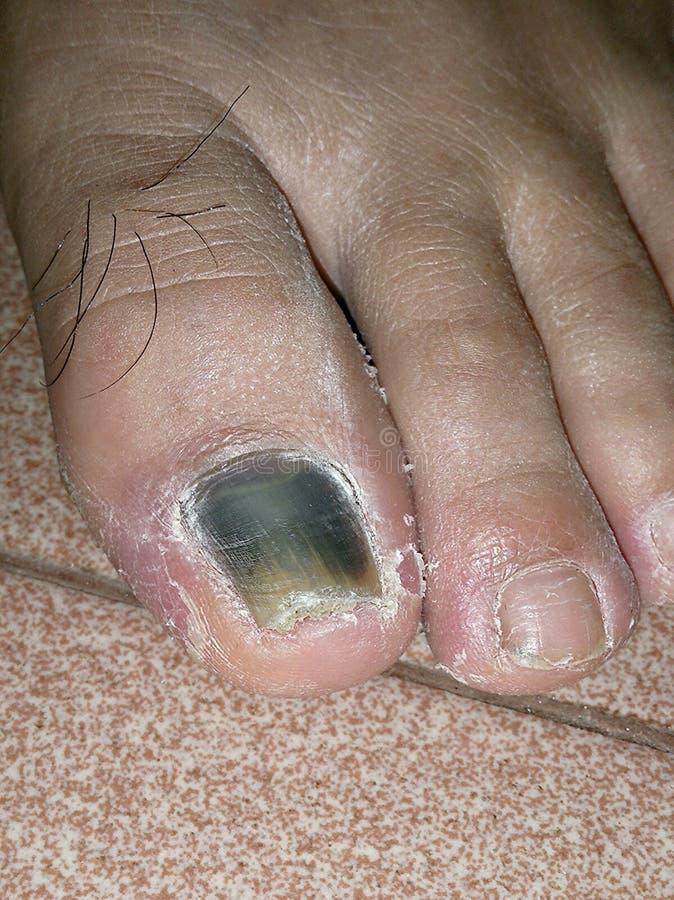 Schließen Sie herauf Ansicht des leicht geschlagenen und gedrehten Schwarzen des Zehennagels lizenzfreies stockbild