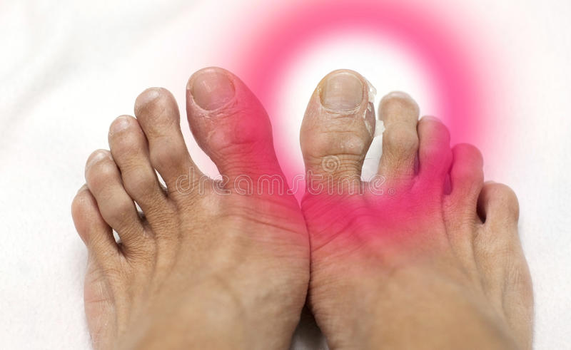 Schließen Sie herauf die Fuß-Männer, die Haut abziehen stockfotos