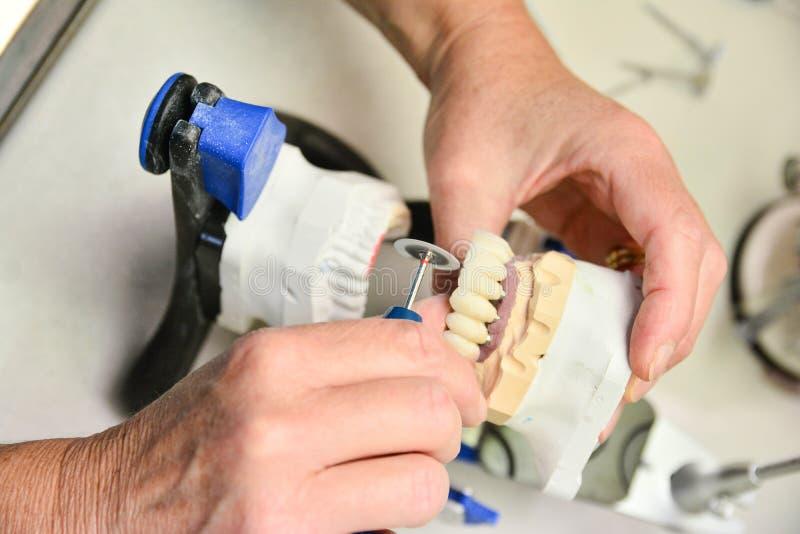 Schließen Sie herauf Zahn-Hygieniker stockfoto