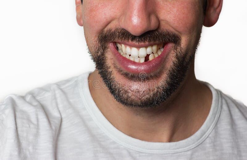 Mann-fehlender Zahn lizenzfreies stockfoto