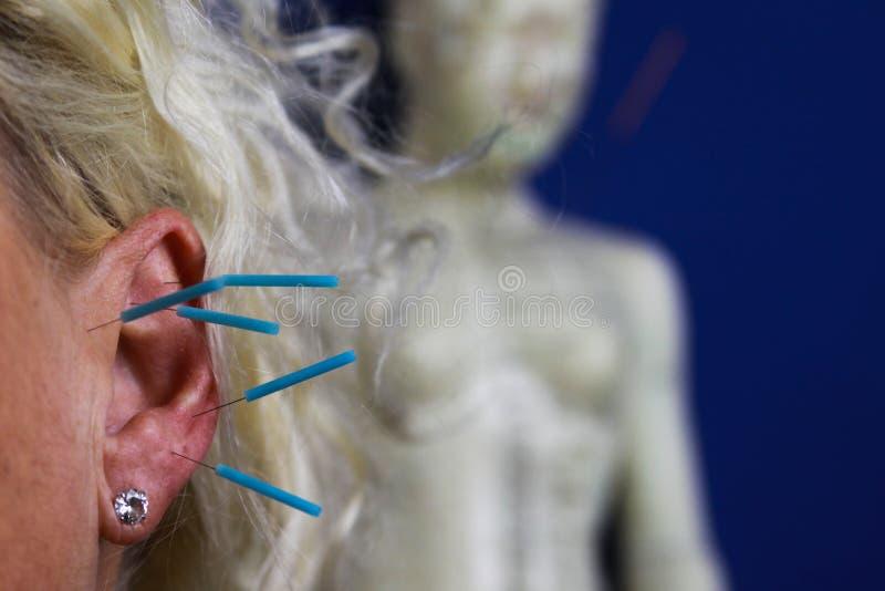 Schließen Sie oben vom menschlichen weiblichen Ohr mit blauen Nadeln: Ohrakupunktur als Form der alternativen chinesischen Medizi lizenzfreies stockfoto