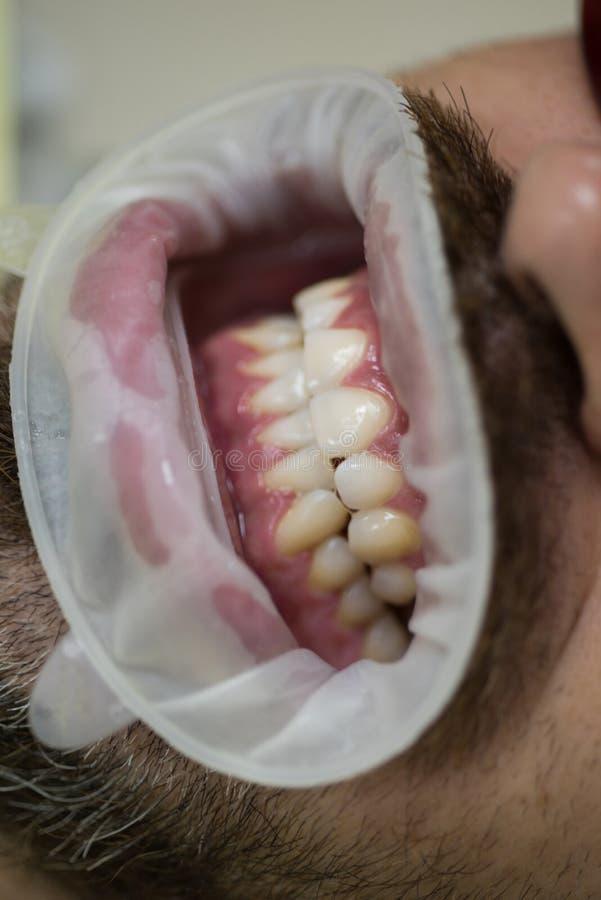 Schließen Sie oben von den Männern, die mit offenem Mund im medizinischen Stuhl geduldig sind Doktor mit dem Assistenten, der Zah stockfotografie