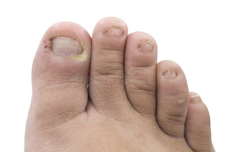 Schließen Sie oben von der pilzartigen Infektion auf Nägeln Fuß, Finger mit onychomy lizenzfreies stockfoto