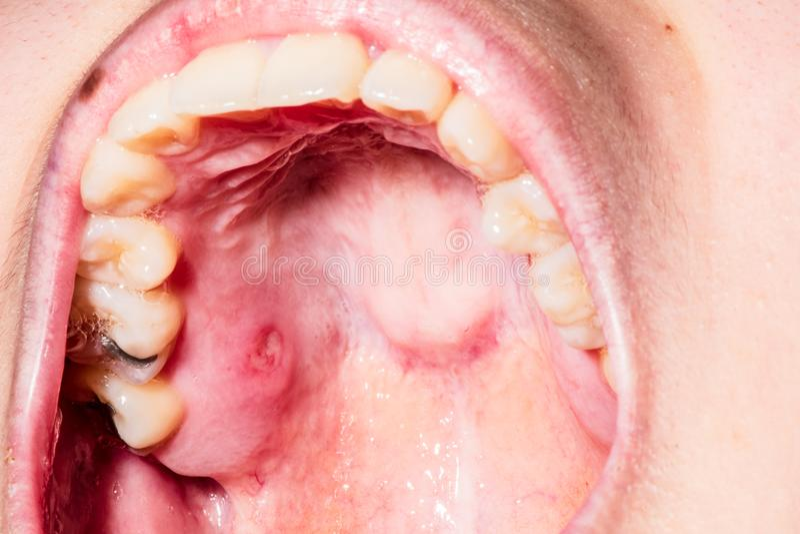 Schließen Sie oben von der Stomatitis in den Mundbiegungen stockfoto
