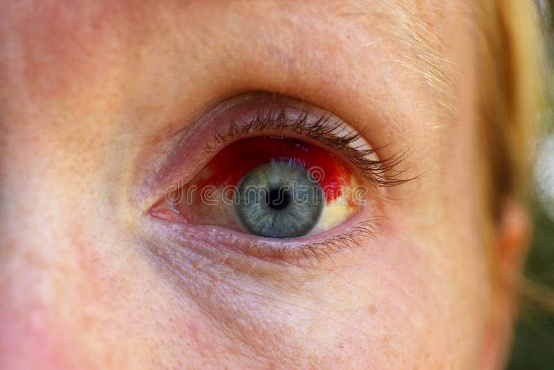Schließen Sie oben von Frauen ` s Auge mit Subconjuctival-Blutung, gebrochenes B lizenzfreie stockfotos