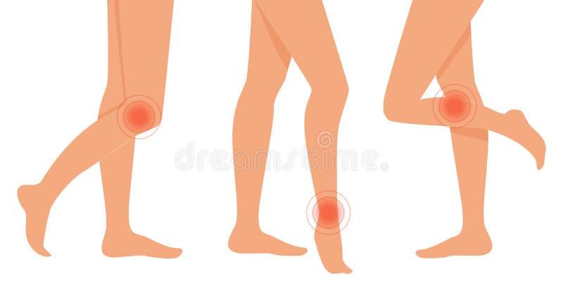 Schmerz in den Beinen Auch im corel abgehobenen Betrag flach stock abbildung