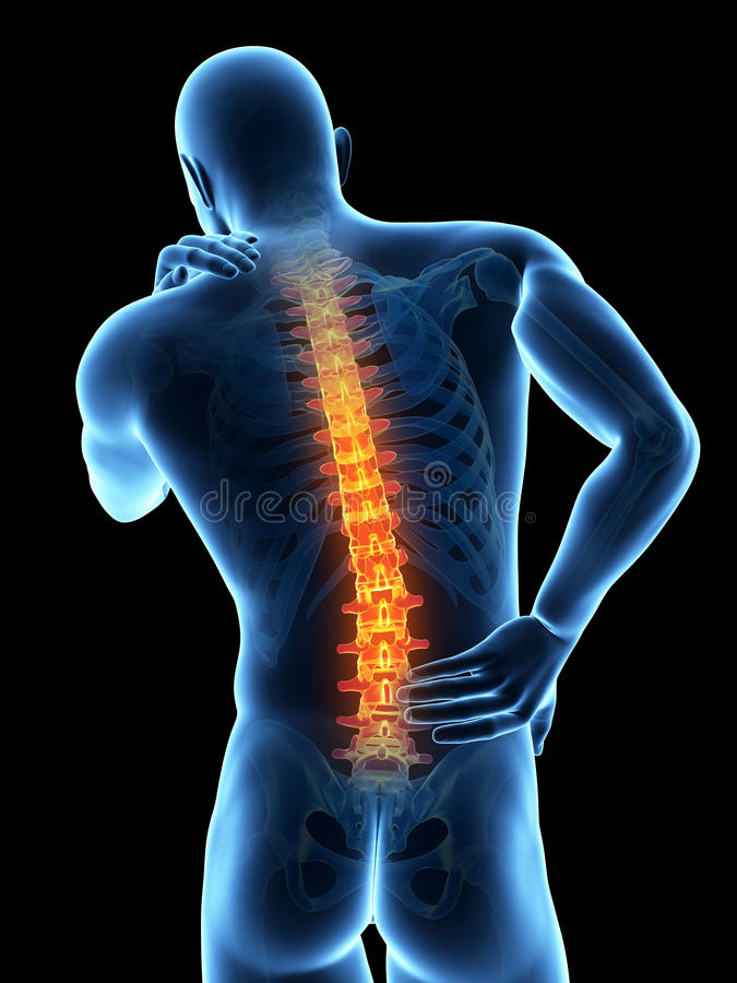 Schmerz in der Rückseite vektor abbildung
