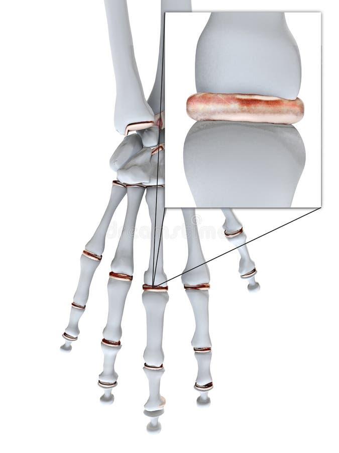 Schmerzliche Handjoints/Arthritis Stock Abbildung - Illustration von ...