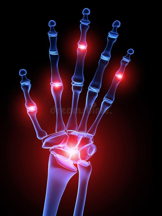 Schmerzliche Handverbindungen vektor abbildung