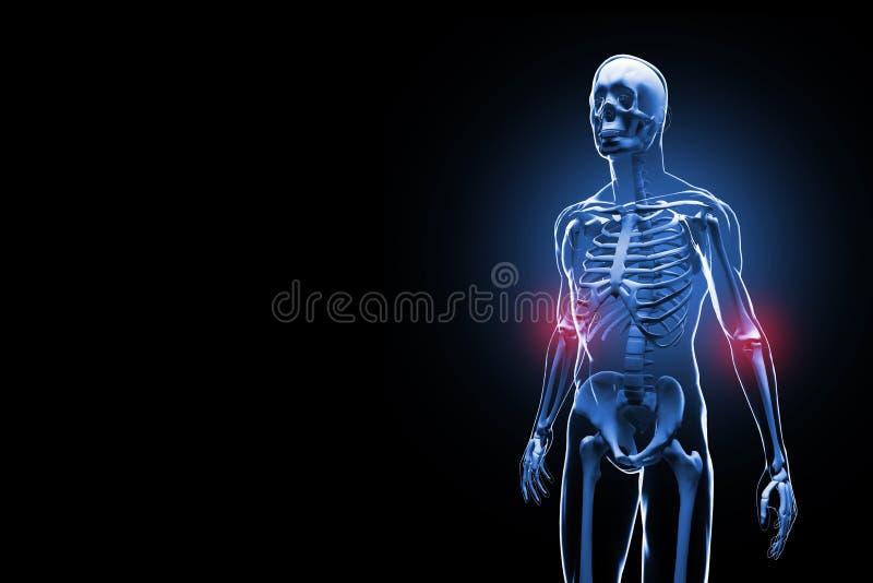 Schmerzliche Illustration der Ellbögen 3D stock abbildung