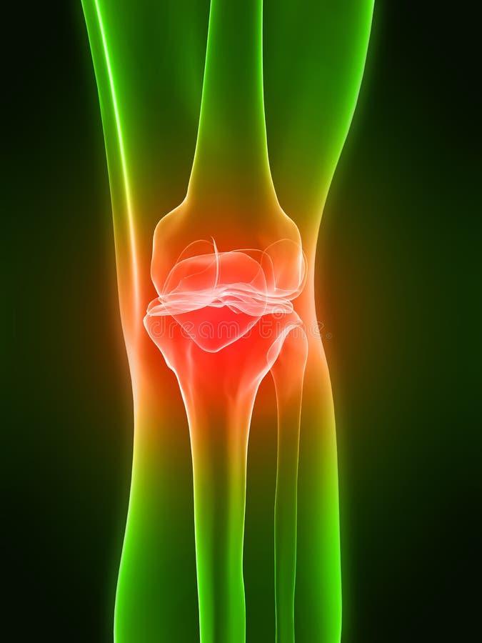 Schmerzliches Knie lizenzfreie abbildung