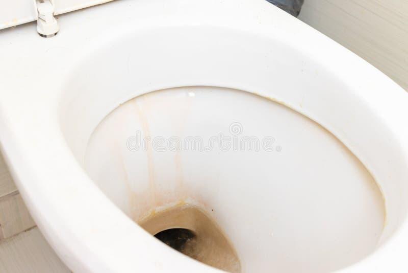 Schmutzige unhygienische Toilettensch?ssel mit limescale Fleck am allgemeinen Toilettenabschlu? oben lizenzfreies stockbild