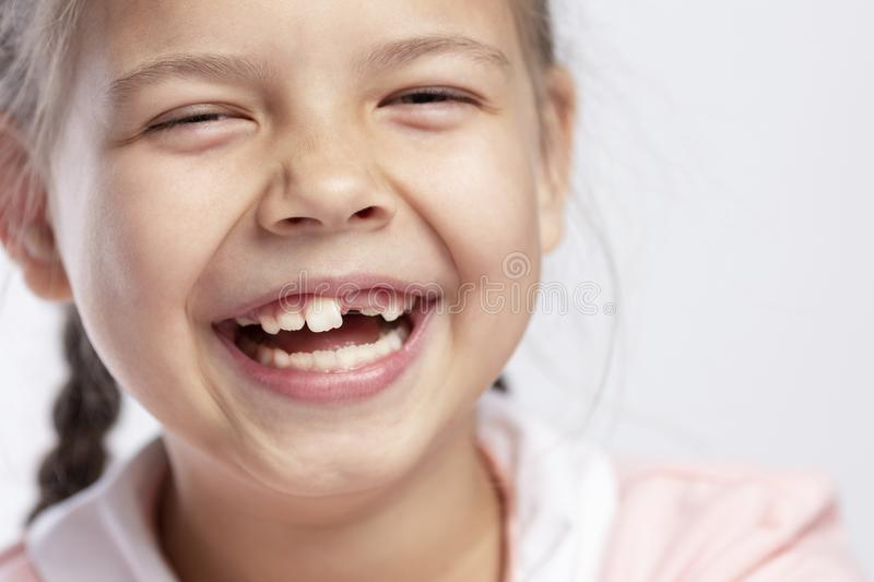 A school-age girl without a front tooth is laughing. Close-up. Change of teeth. Horizontal stock photo