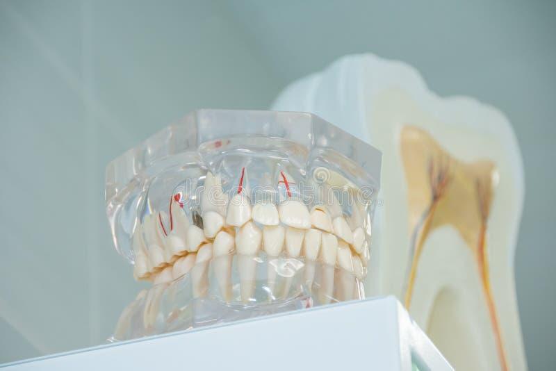 Schoon tandengebit, tandbesnoeiing van de tand, tandmodel, in tandarts` s bureau royalty-vrije stock afbeelding