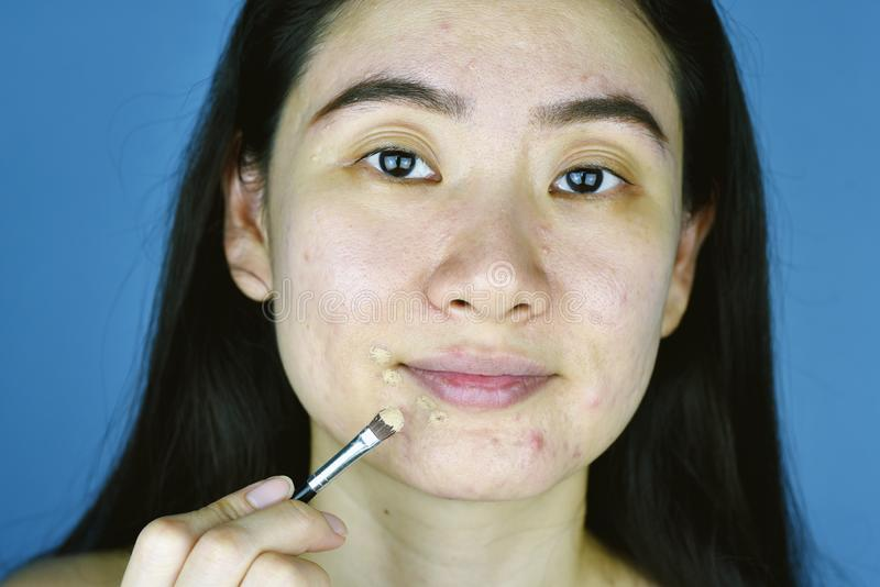 Schoonheidsmiddelenacne, Aziatische vrouw die camouflagestiftmake-up toepassen op gezichts de huidprobleem van de huidenacne royalty-vrije stock afbeelding