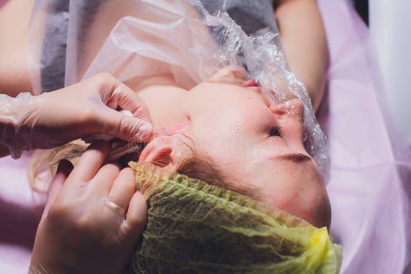 Schoonheidsspecialist die injectie in vrouwen` s gezicht maken, close-up Biorevitalizationprocedure royalty-vrije stock foto's