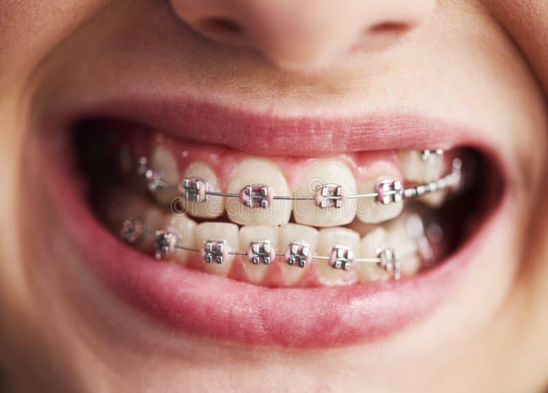 Schot van de tanden van het kind met steunen royalty-vrije stock afbeelding