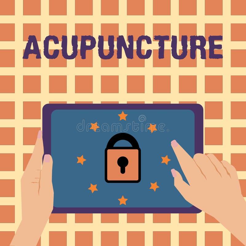 Schreiben der Anmerkung, die Akupunktur zeigt Geschäftsfoto, das alternative Therapie Behandlung für die Schmerz- und Krankheitsa stock abbildung