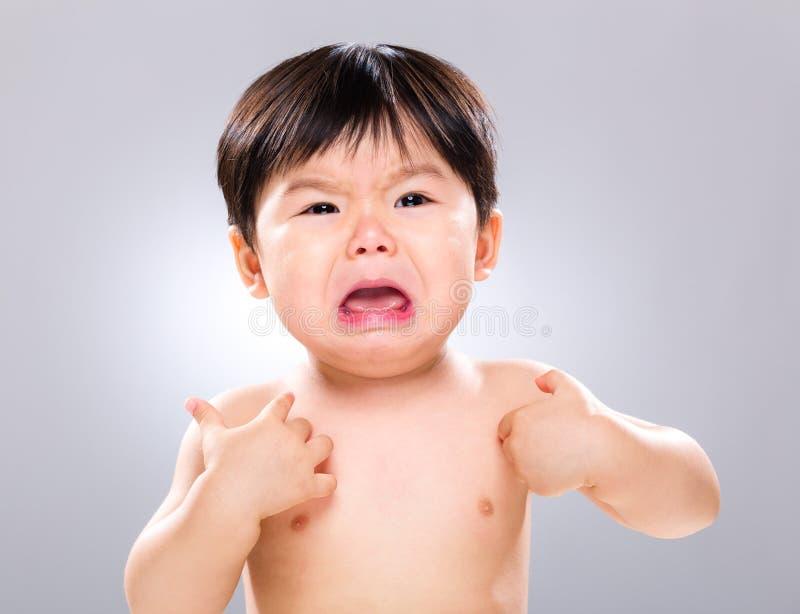 Schreiendes Baby mit dem Verkratzen seines Körpers stockfotografie