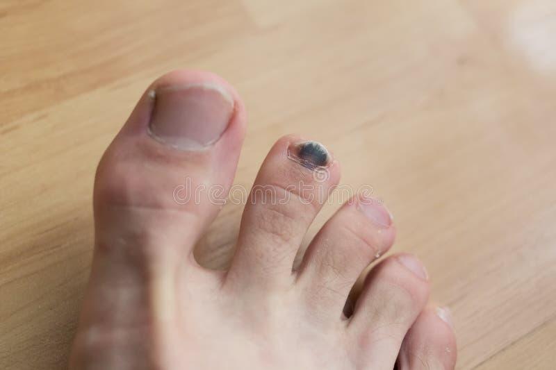 Schwarzer Zehennagel nach Verletzung lizenzfreies stockbild