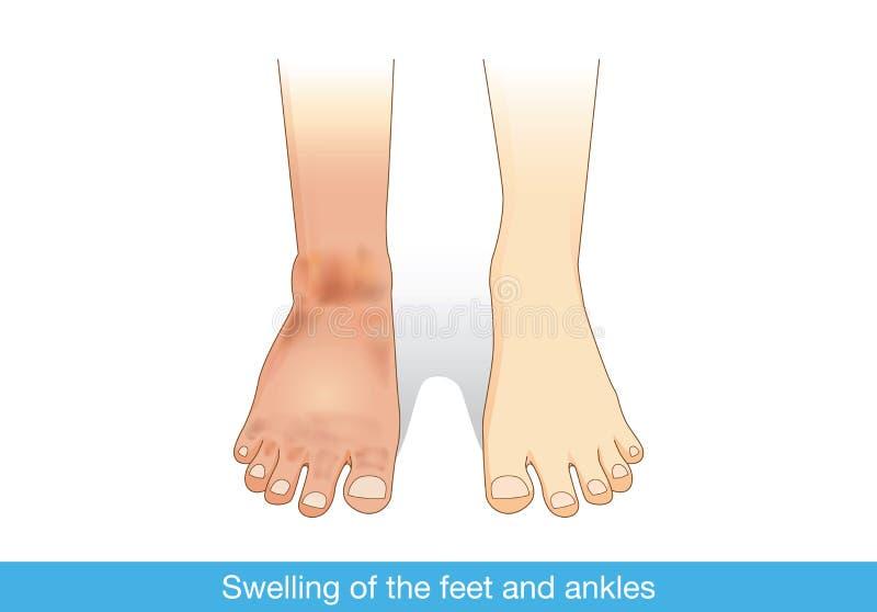 Schwellen der Füße und der Knöchel stock abbildung