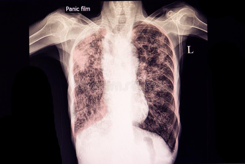 schwere Tuberkulose lizenzfreie stockfotos