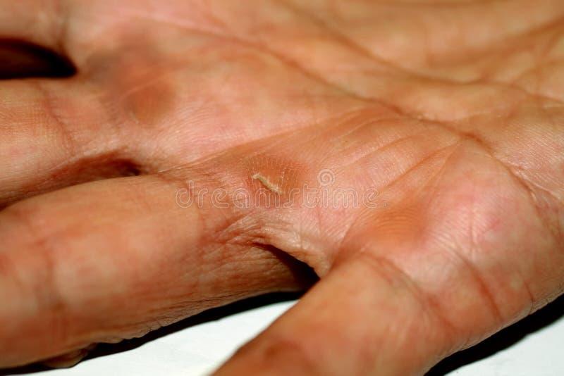 Schwielen auf der Palme und den Fingern der Hand Arbeitskörner lizenzfreie stockfotografie